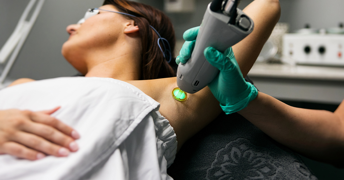 laser-hair-removal-1200x628-facebook